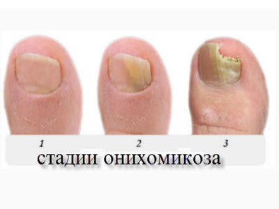 chem-obrabotat-veshi-ot-gribka-stopi