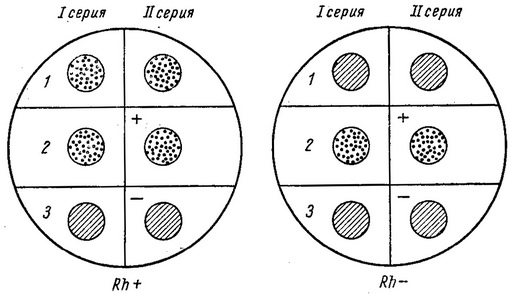 Определение группы крови по