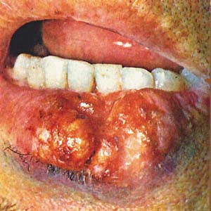 Онемение нижней губы ботокс - 1