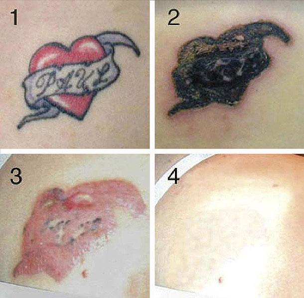 Можно ли вывести шрамы в домашних условиях